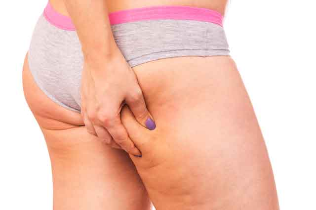 Come curare la cellulite in maniera efficace
